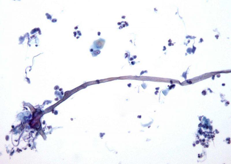 бактерии попадают в организм