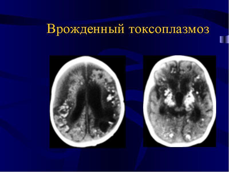 врожденный токсоплазмоз человека