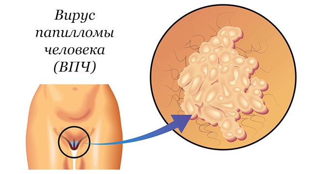 Лечение ВПЧ (вирус папилломы человека) у женщин и мужчин
