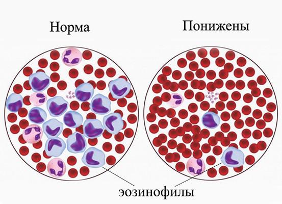 Эозинофилия у детей