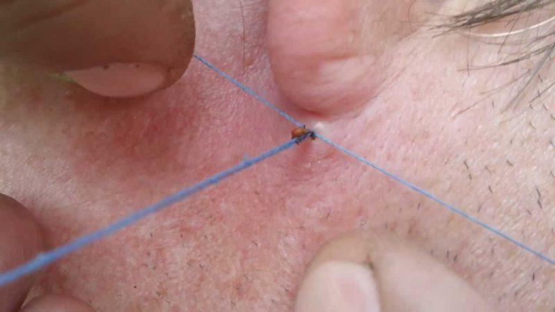 как удалить насекомое ниткой