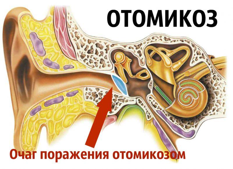 очаг поражения отомикозом