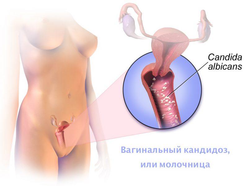 вагинальный кандидоз