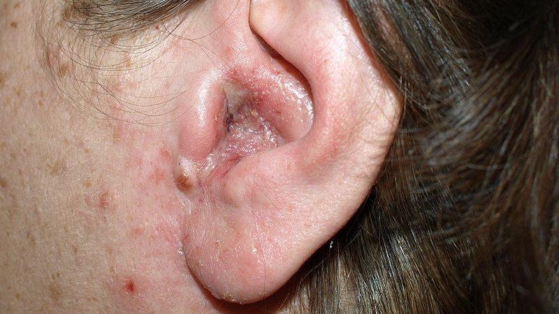 фото воспаленного уха