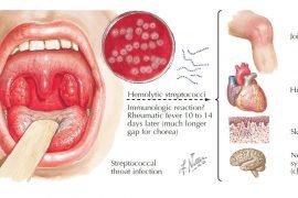 Симптомы стрептококка у взрослых: чем лечить, профилактика