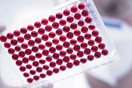 Антитела к аскаридам: расшифровка анализа