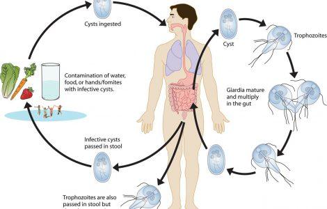 Причины, симптомы, методы лечения лямблий у взрослых