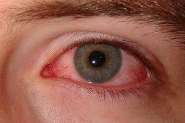 Хламидийный конъюнктивит: причины, симптоматика, лечение