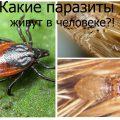 Виды паразитов живущих в человеке