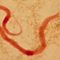 Дирофиляриоз у человека: симптомы и лечение