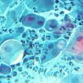 Хронический хламидиоз: причины, симптомы, лечение