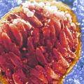 Токсоплазмоз: симптомы у человека