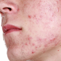 Демодекоз у человека на лице: фото, симптомы
