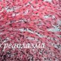 Ureaplasma spp (уреаплазма спп)
